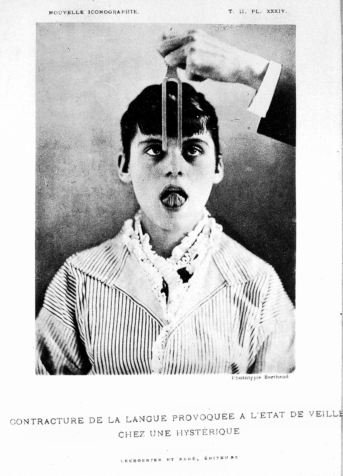 L0020546 Paul Richer, 'Gonflement du cou chez un hysterique' Credit: Wellcome Library, London. Wellcome Images images@wellcome.ac.uk http://wellcomeimages.org 'Contracture... provoquee l'etat de veille...' Gonflement du cou chez un hysterique Nouvelle iconographie de la Salpetriere Paul Richer Published: 1889 Copyrighted work available under Creative Commons Attribution only licence CC BY 4.0 http://creativecommons.org/licenses/by/4.0/